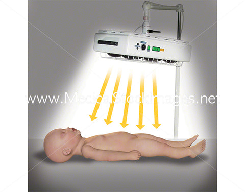 Thermal Radiator on Child
