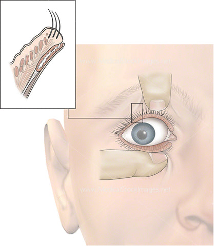 Site of Chalazion Cyst