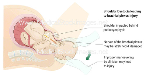 Brachial Plexus Stretch Injury (Labelled)