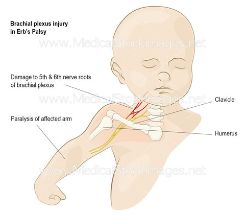 Brachial Plexus Injury in Erb's Palsy (Labelled)