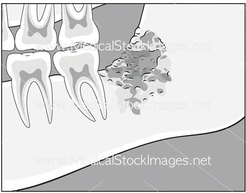Osteomyelitis of the Mandible