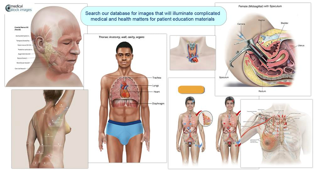 medical illustration of comparative stomach
