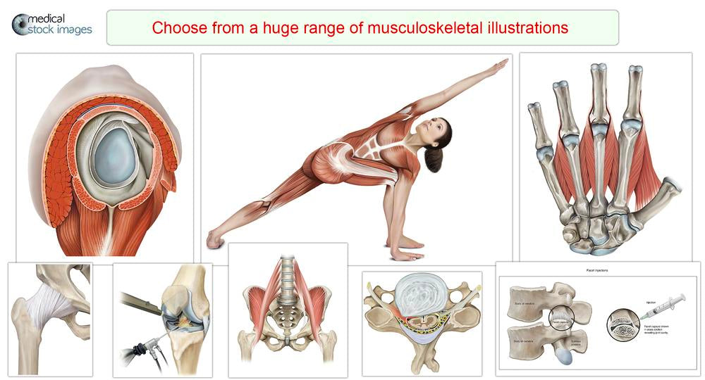 arteries and stent insertion illustration