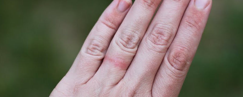 are to if your pin rash how they rings you on eczema giving wedding clean finger