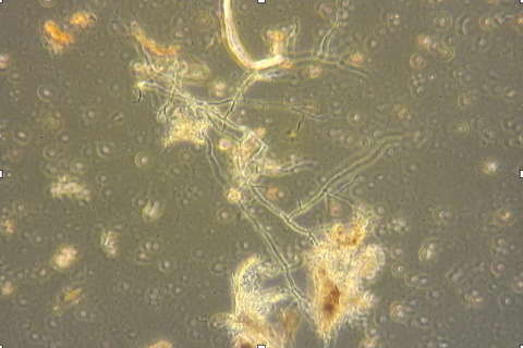 Fungal hyphae under my phase contrast microscope