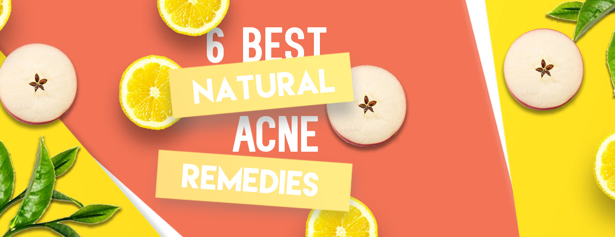 Top 6 Best Natural Remedies for Acne
