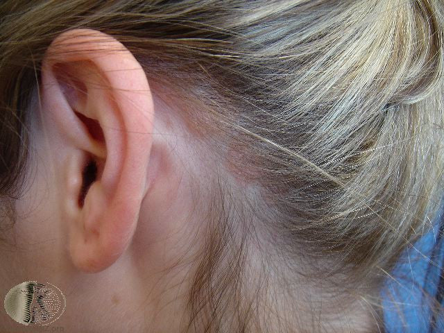 Psoriasis on the scalp. Dermatique can help