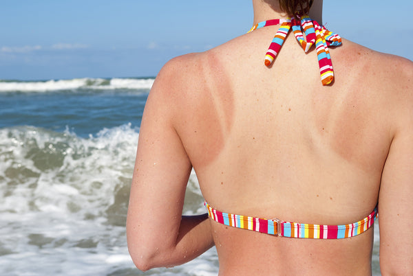 How to heal sunburn quickly