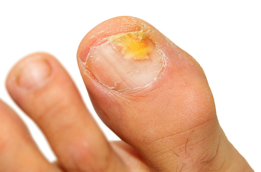 Treat Fungal Nails in 5 Steps
