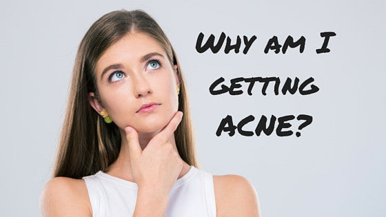 Why am I getting ACNE? -5 min read-