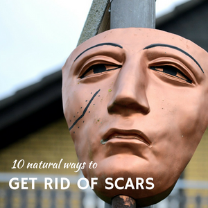 10 natural ways to get rid of scars