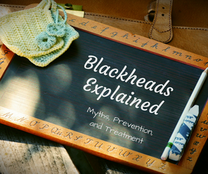 blackheads explained
