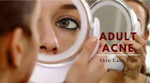 adult acne skin care tips