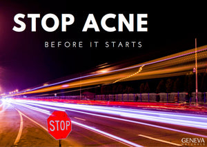 How to Stop Acne Before it Starts