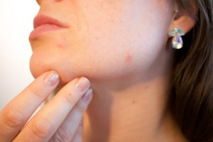 woman picking acne on face