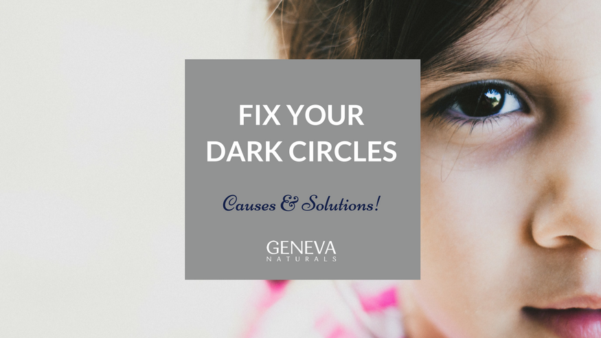 common causes and solutions of dark circles
