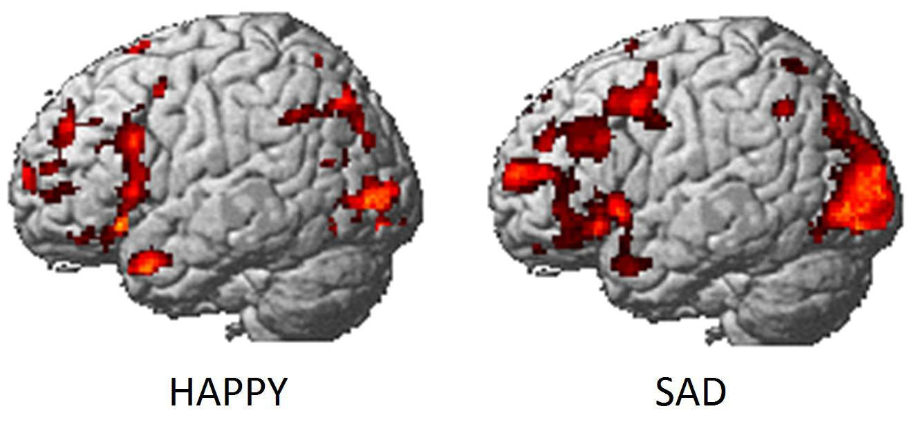 This Is Your Brain On Happy