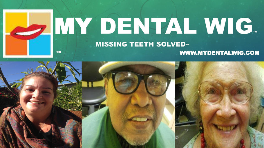 Should I Get an Implant for My Missing Tooth?