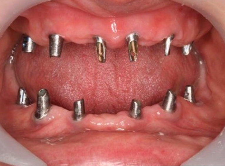 Do Dental Implants Transform Mouth Into A Mine?