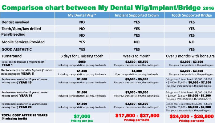 The Real Cost of Dental Implants in 2016: Options Comparison