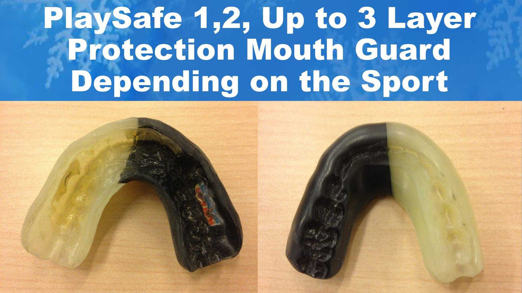 Playsafe Sports Mouth Guard - My Dental Wig