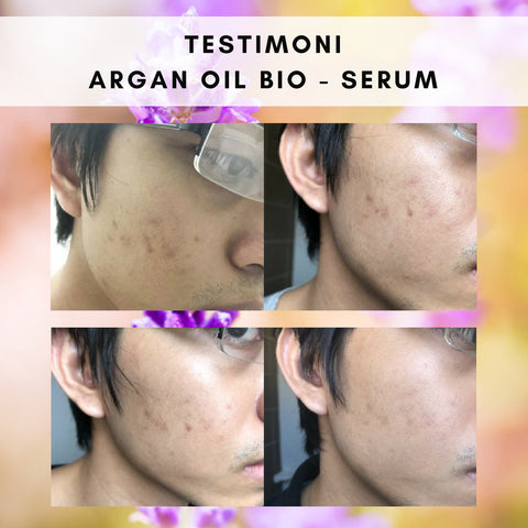 Testimoni Acne Serum Skin Care Argan Oil Bio Serum – Bioshifax Marketing