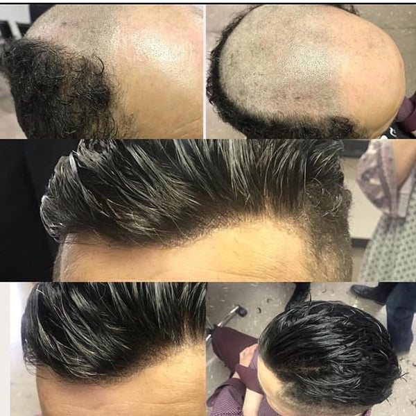 Men's Hair Replacement Service