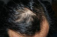 After the Clear Skincare hair regrowth treatment