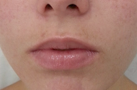 Acne Solution After treatment