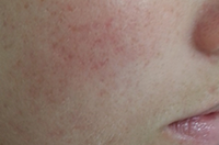 Acne - after treatment