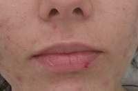 Acne Solution Before Treatment