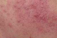 Acne - before treatment