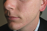 After treatment with the Clear Skincare acne scarring needling treatment.
