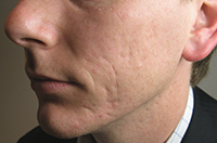 Acne scarring before Clear Skincare needling