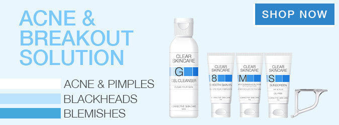For Acne and Breakouts