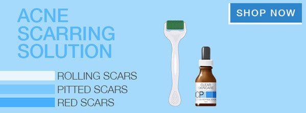For Acne Scarring