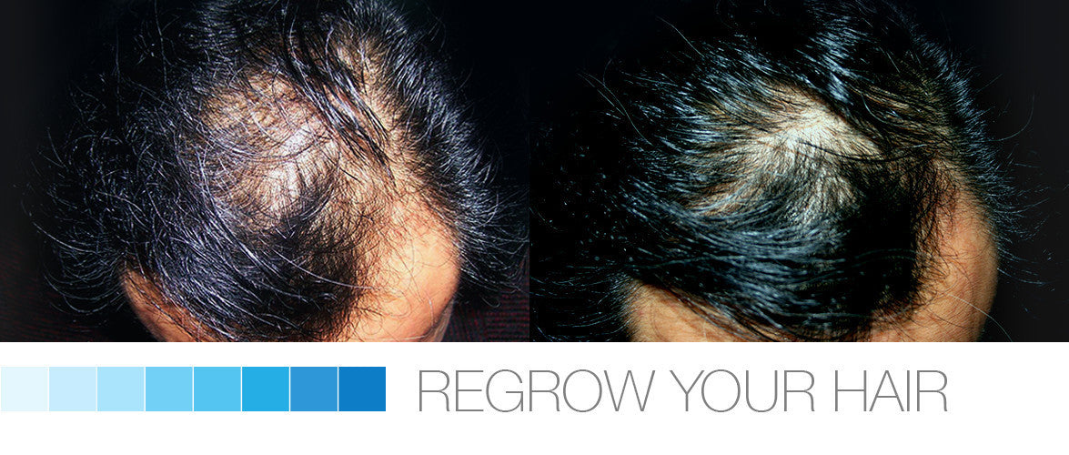 Regrow Your Hair in 4-6 Weeks