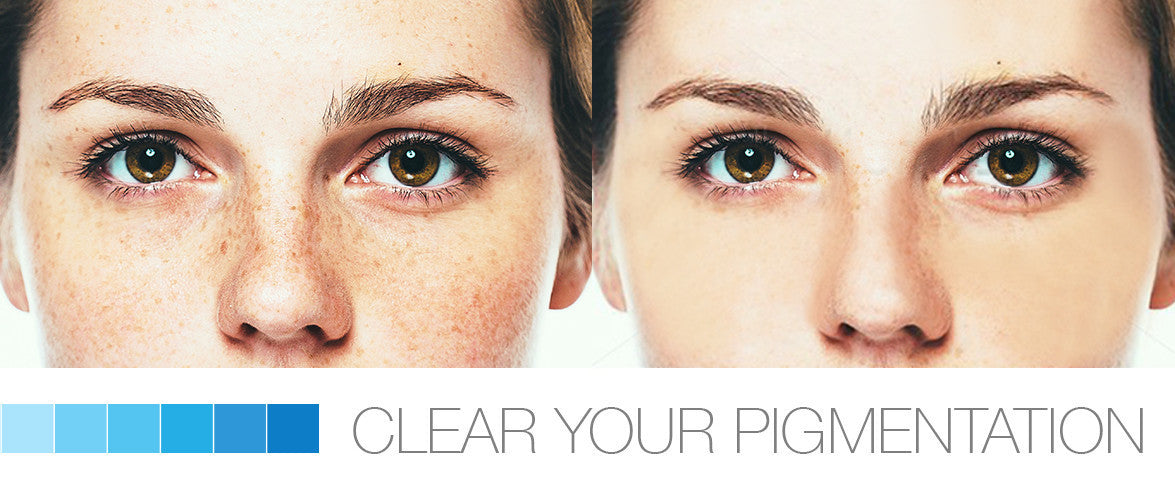 Clear Your Pigmentation