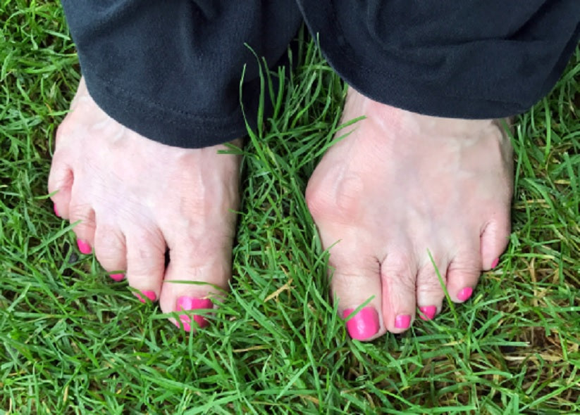 Crooked Toes And How To Correct Them