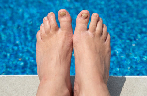 Aging Feet: Natural Changes and Care 02