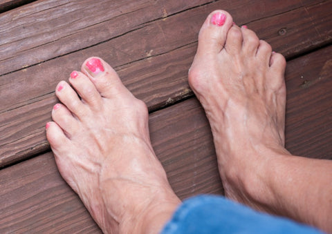 Bunions: Symptoms, Types, and Treatment 02
