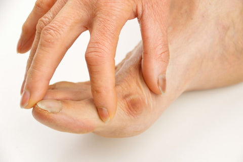 Bunions: Symptoms, Types, and Treatment 03