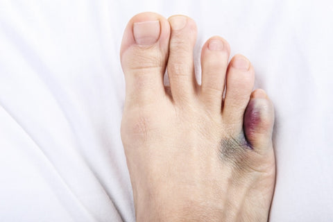 Bunions: Symptoms, Types, and Treatment 04
