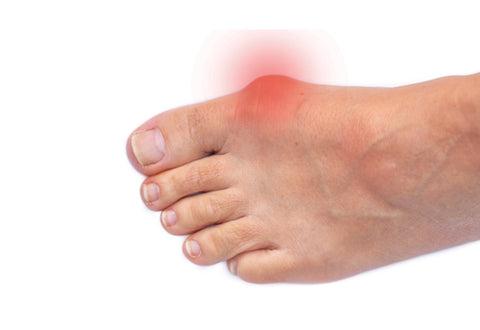 Bunions: Symptoms, Types, and Treatment 05
