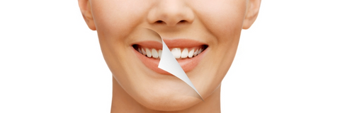 Otc Whitening Kits And Dentist Teeth Whitening What S The Difference