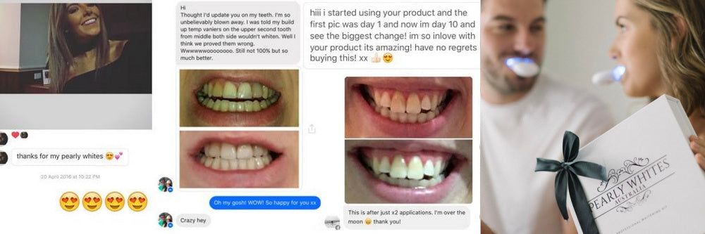 Pearly Whites The Best Home Teeth Whitening Products