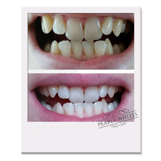 Teeth Whitening before and after photos from a Pearly Whites customer
