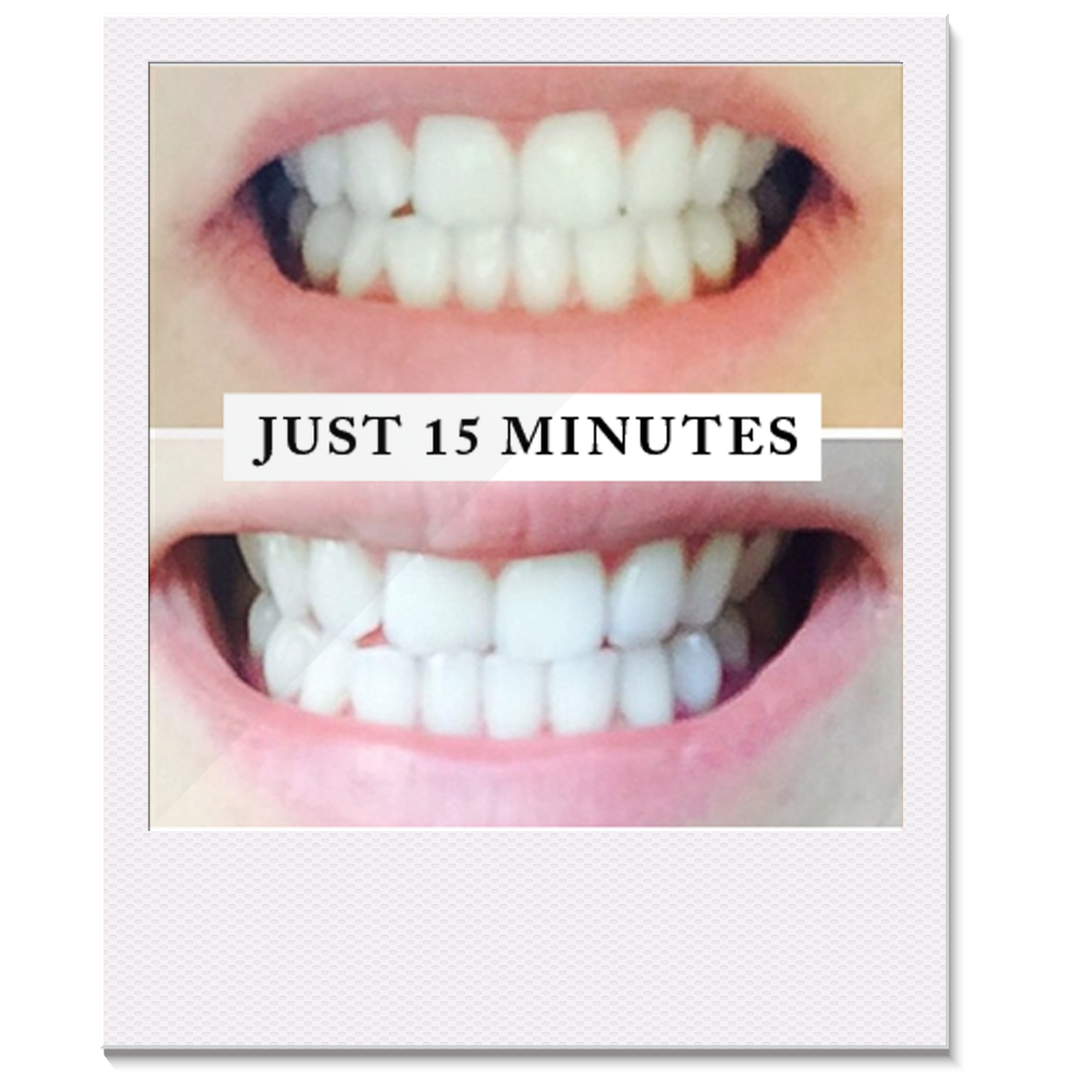 Pearly Whites Teeth Whitening kit before and after photo