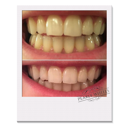 before and after photo from a Pearly Whites customer