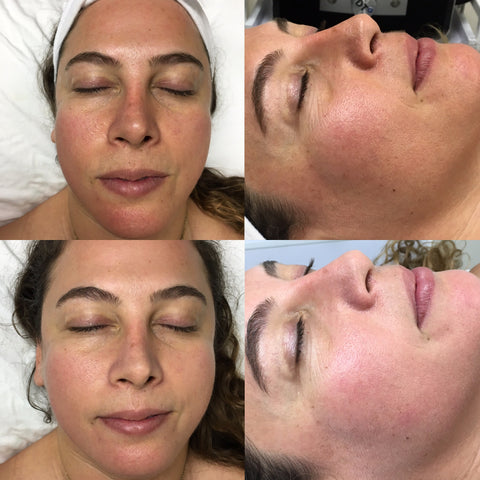 HydroFacial with Serum Infusion